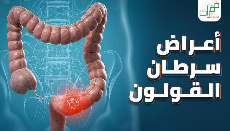 تعرف على أعراض سرطان القولون فقرات